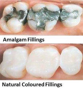natural-colured-fillings - Copy