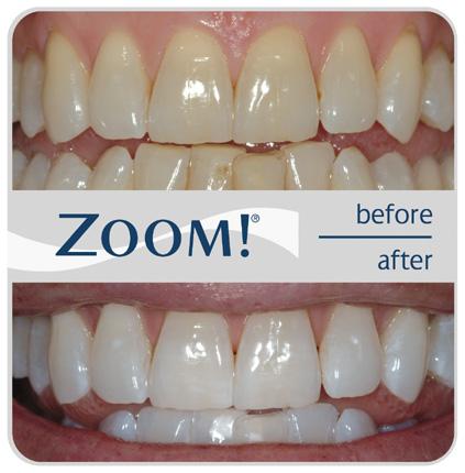 teeth-whitening-beacon-cove-dental